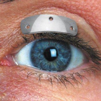 Thinprofile™ Eyelid Weights
