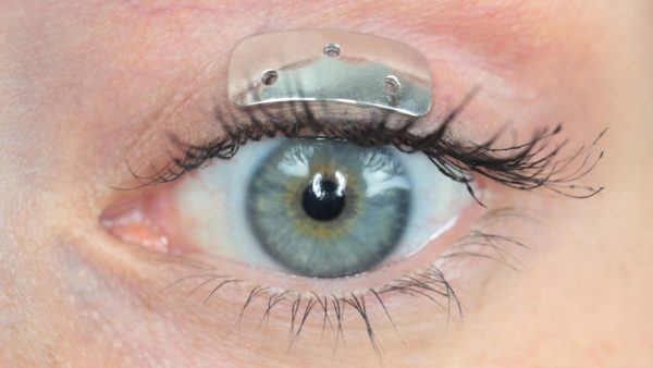 Contour™ Eyelid Weights